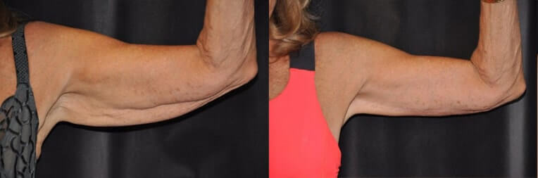 Arm Lift Before And After Patient 01 Case 3019 Closeup View