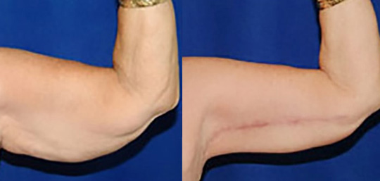 Arm Lift Before And After Patient 01 Case 3025 Closeup View Mn