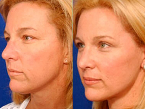 Browlift tuck before and after patient-02 case 3301 side view