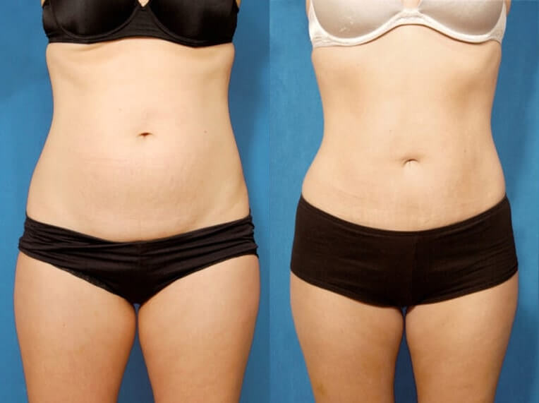 Hybrid Tummy Tuck Before And After Patient 01 Case 3029 Overview