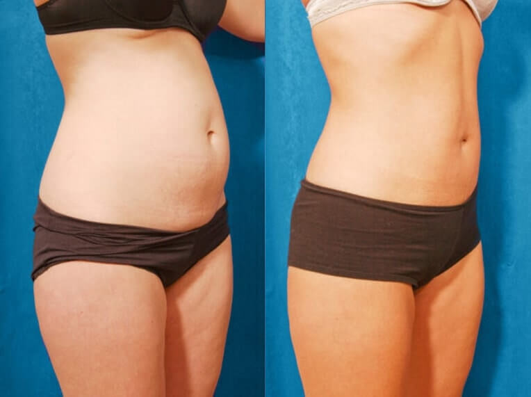 Hybrid Tummy Tuck Before And After Patient 01 Case 3029 Side View