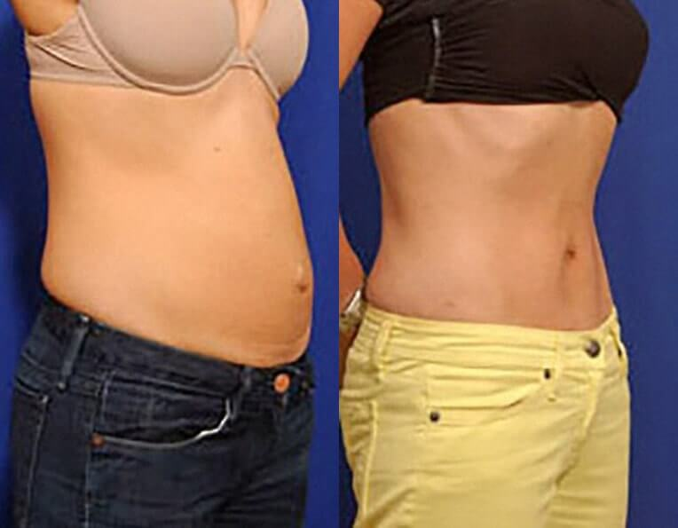 Hybrid Tummy Tuck Before And After Patient 03 Case 3043 Side View