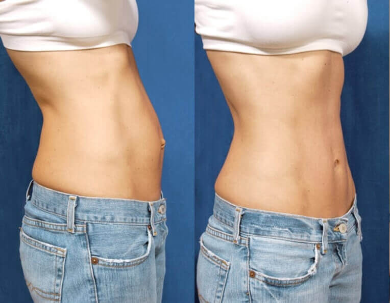 Hybrid Tummy Tuck Before And After Patient 04 Case 3049 Side View
