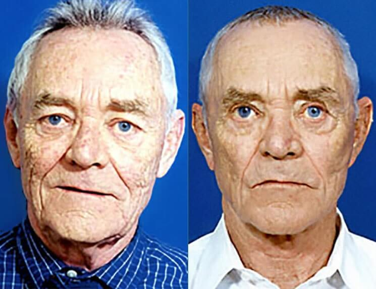 Laser-Skin-Resurfacing-before-and-after-patient-01-case-3987-front-view