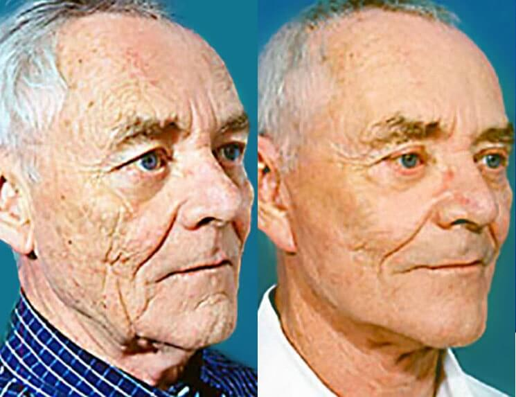 Laser-Skin-Resurfacing-before-and-after-patient-01-case-3987-side-view-1