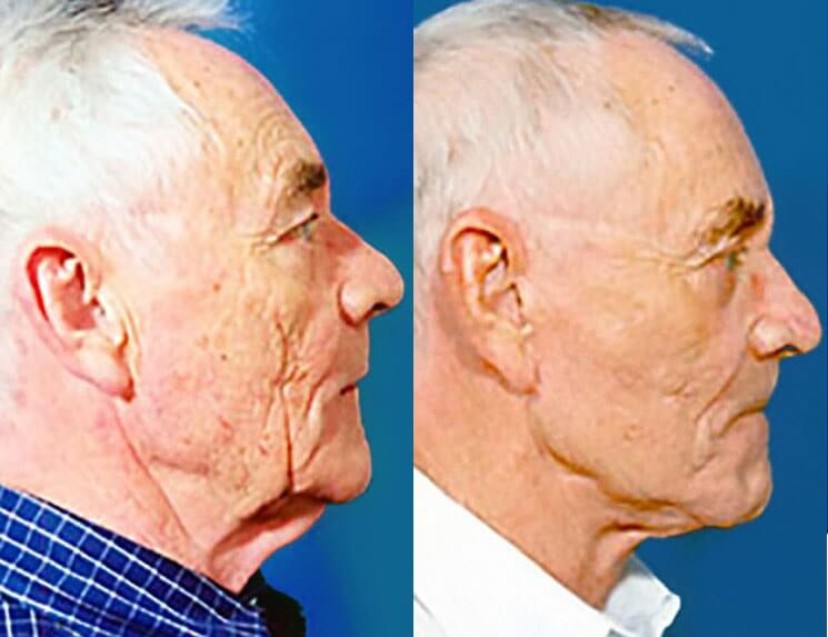 Laser-Skin-Resurfacing-before-and-after-patient-01-case-3987-side-view