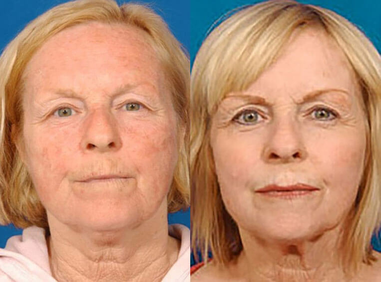 Laser-Skin-Resurfacing-before-and-after-patient-02-case-3995-front-view-1
