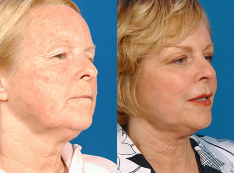 Laser Skin Resurfacing before and after patient 02 case 3995 side view 2