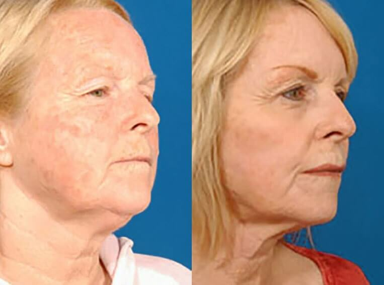 Laser Skin Resurfacing before and after patient 02 case 3995 side view 3
