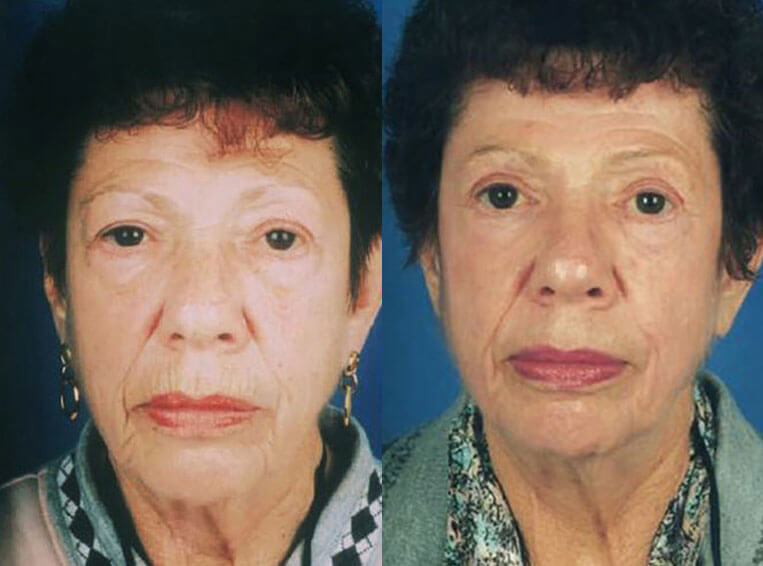 Laser-Skin-Resurfacing-before-and-after-patient-03-case-4007-front-view