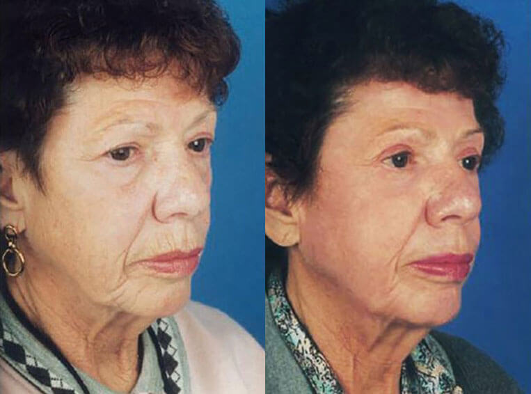 Laser Skin Resurfacing before and after patient 03 case 4007 side view