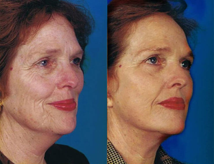 Laser Skin Resurfacing before and after patient 05 case 4019 side view