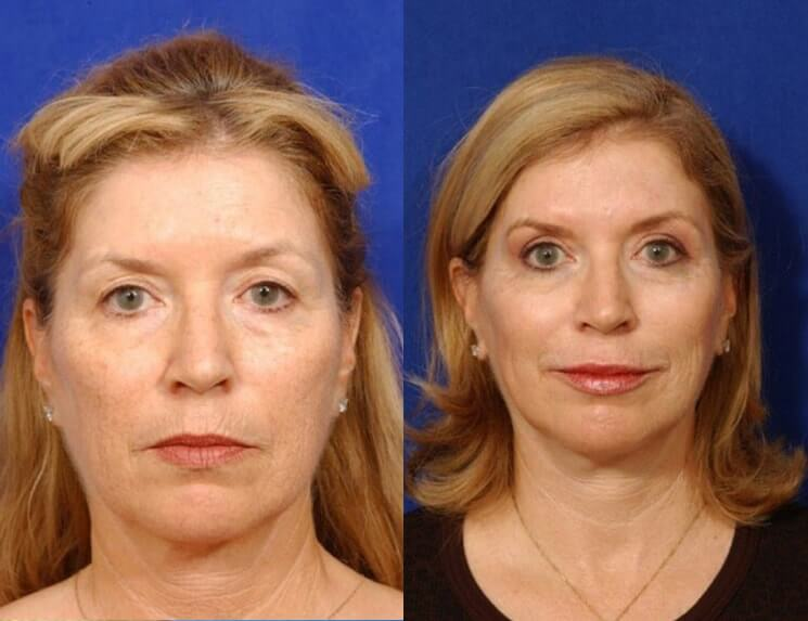 Lip Augmentation before and after patient 01 case 5004 front view 1