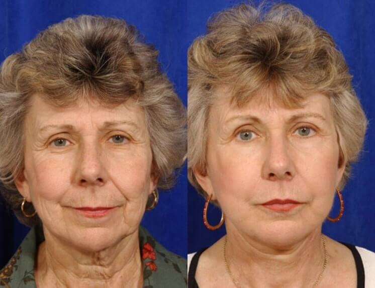 Lip Augmentation before and after patient 02 case 5008 front view 1