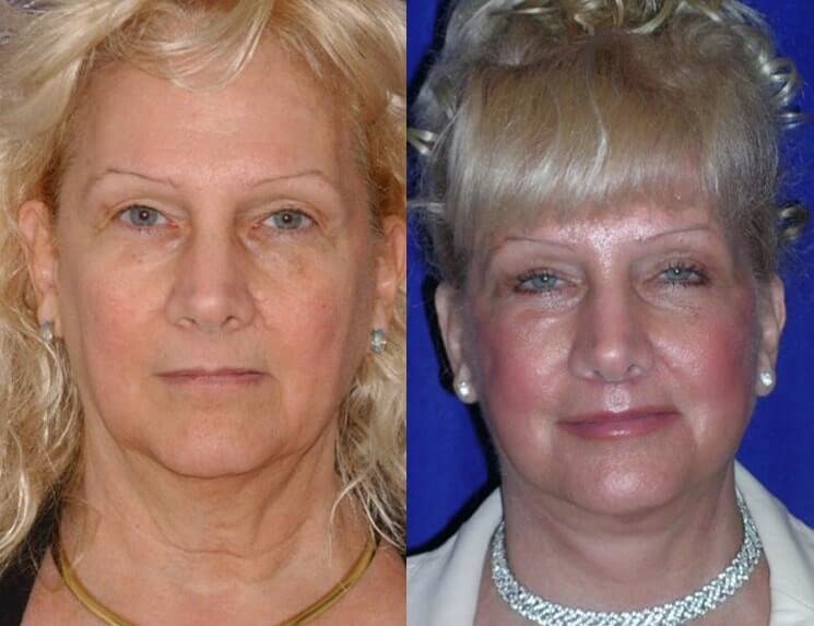 Lip Augmentation before and after patient 03 case 5012 front view