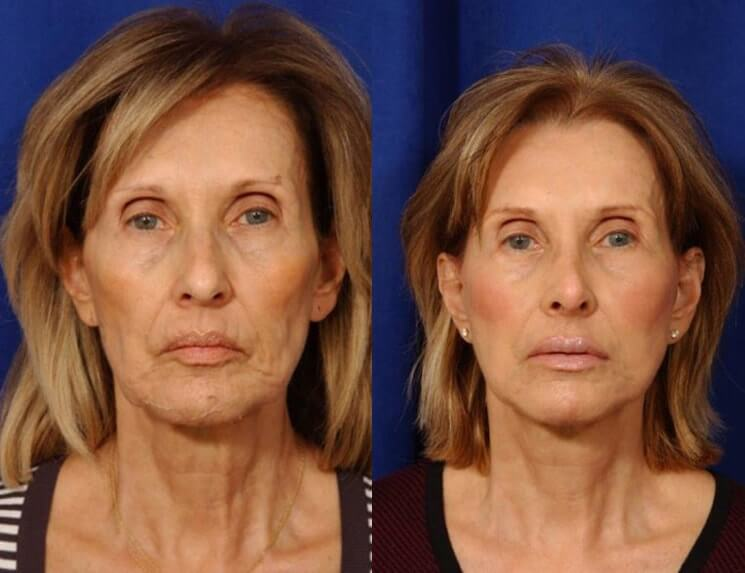 Lip-Augmentation-before-and-after-patient-04-case-5016-front-view