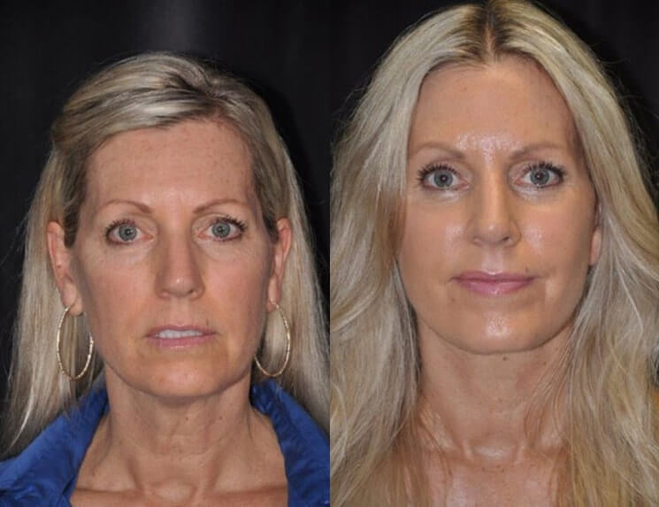 Lip-Augmentation-before-and-after-patient-04-case-5020-front-view