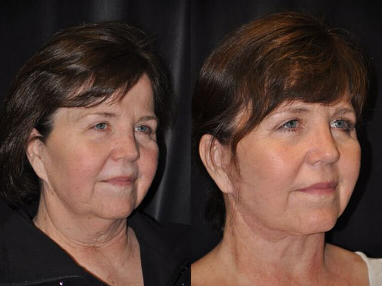 Neck lace before and after patient 11 case 3809 side view 2