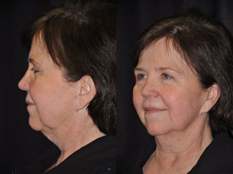 Neck lace before and after patient 11 case 3809 side view