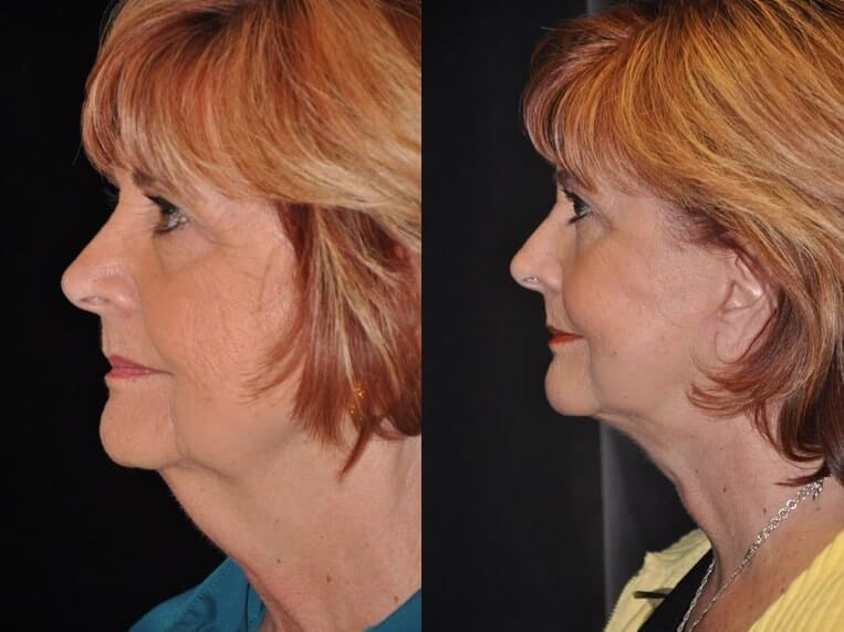 Neck lace before and after patient 9 case 3801 side view 2