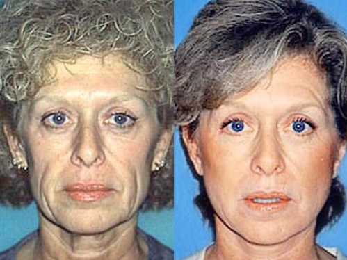 Necklift before and after patient 1 case 3823 front view