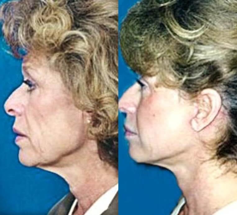 Necklift before and after patient 1 case 3823 side view