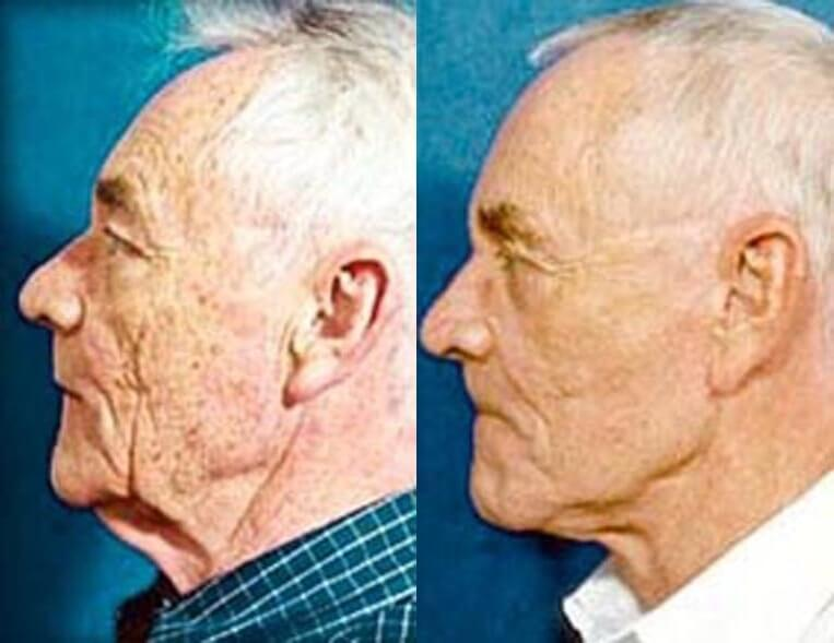 Necklift before and after patient 2 case 3829 side view