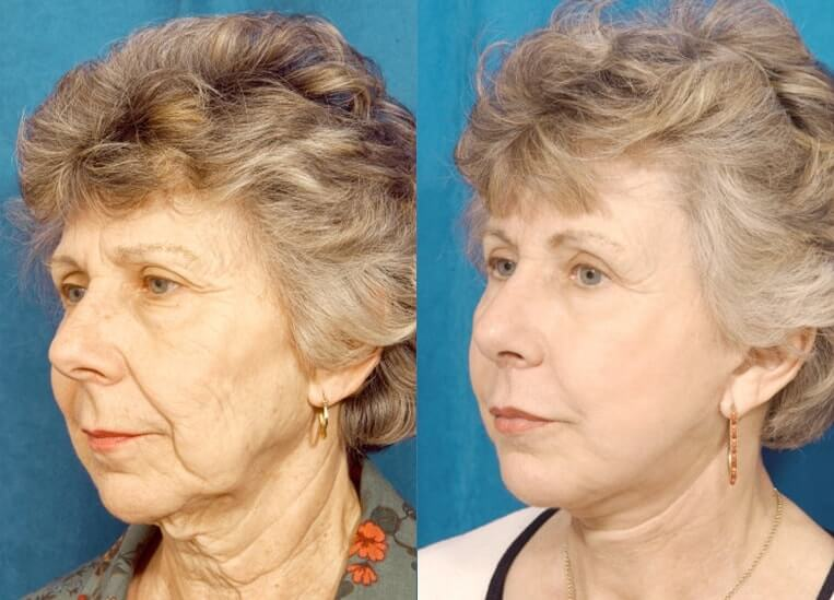 Necklift before and after patient 3 case 3835 side view 2