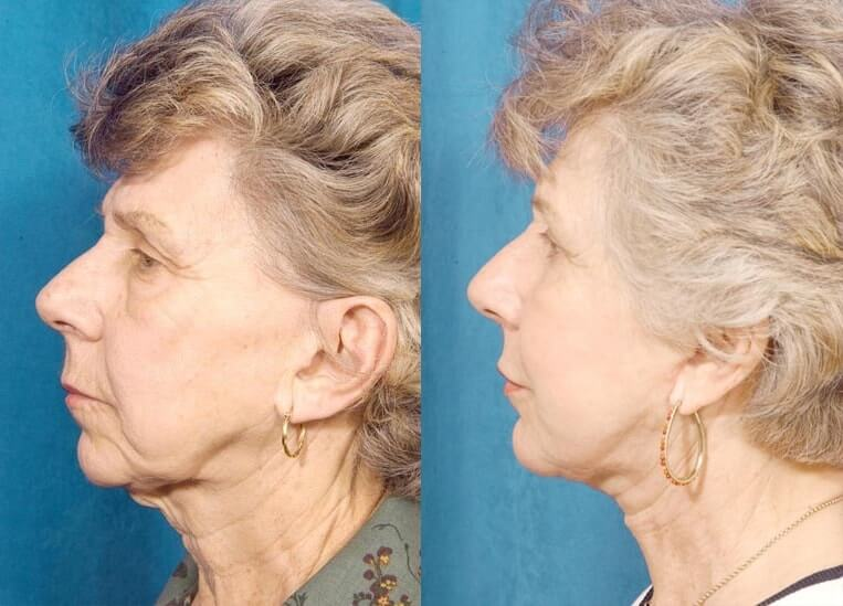 Necklift before and after patient 3 case 3835 side view