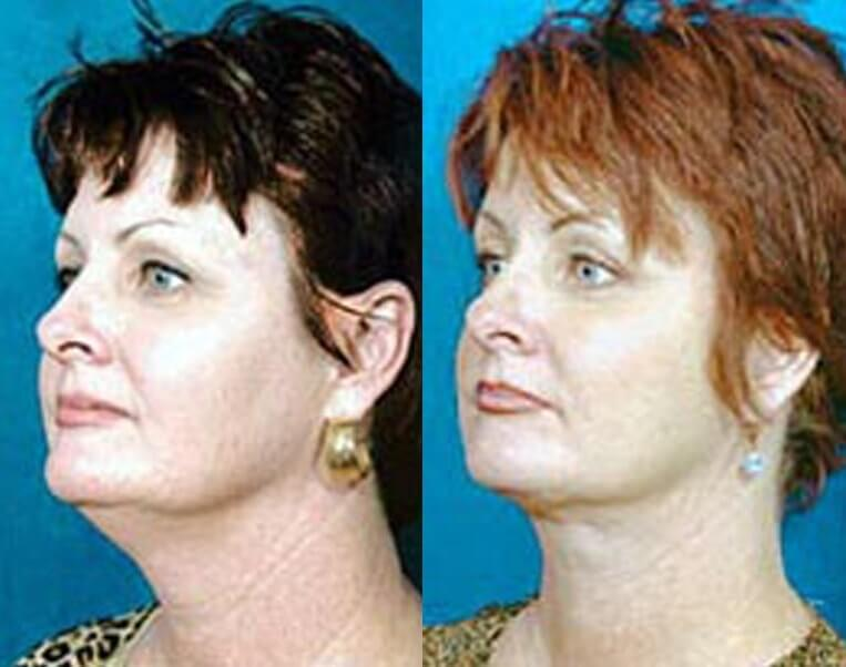 Necklift before and after patient 5 case 3847 side view