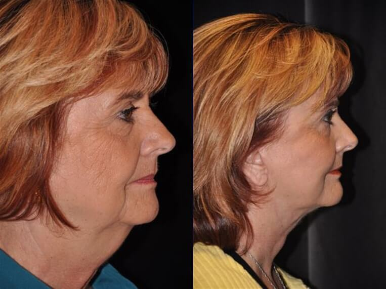 Necklift before and after patient 7 case 3857 side view