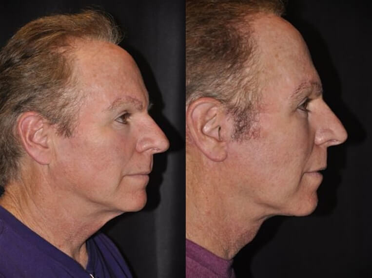 Necklift before and after patient 8 case 3861 side view
