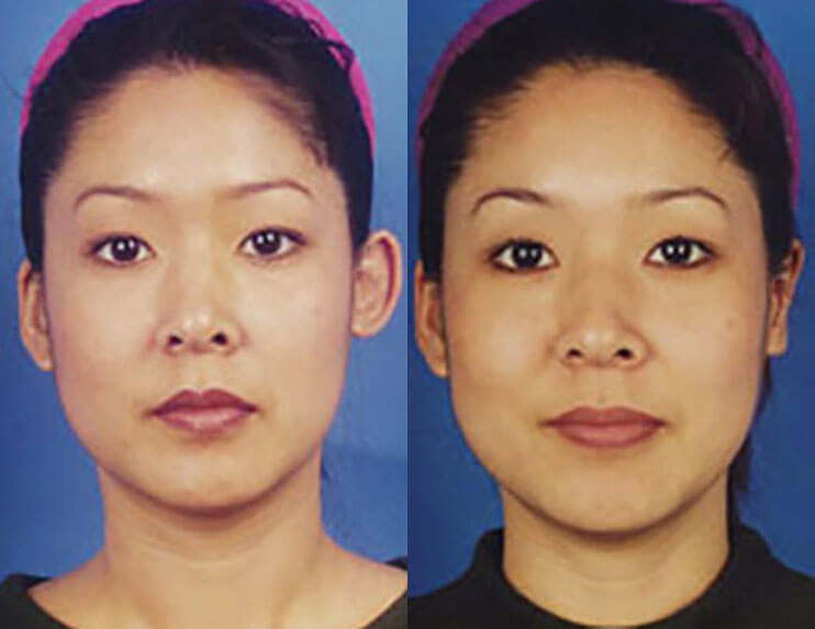 Otoplasty Ear Surgery before and after patient 01 case 4998 front view 1