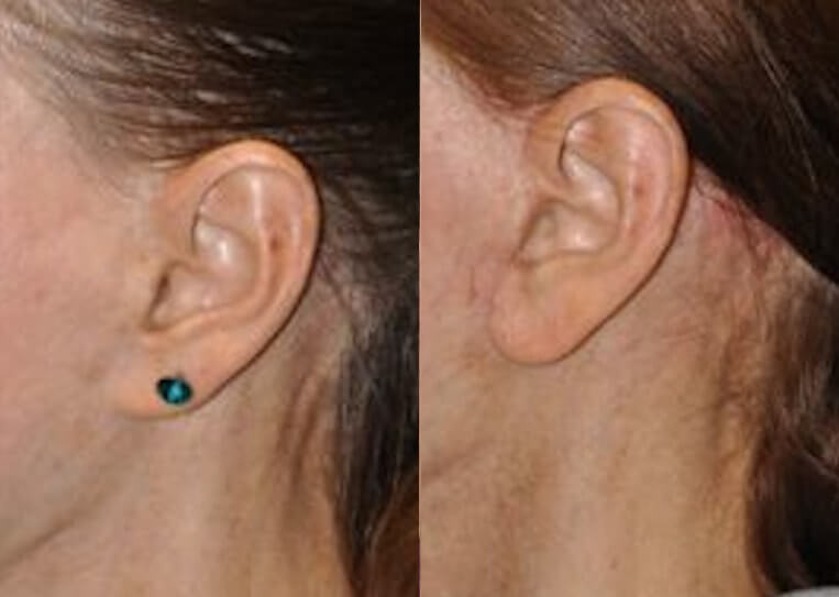 Pixie ear before and after patient 1 case 3865 close up