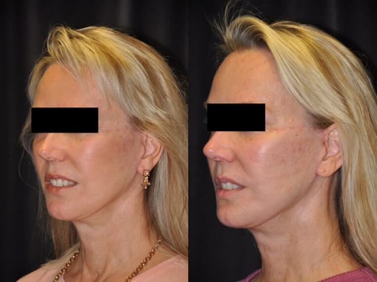 Pixie ear before and after patient 2 case 3869 side view