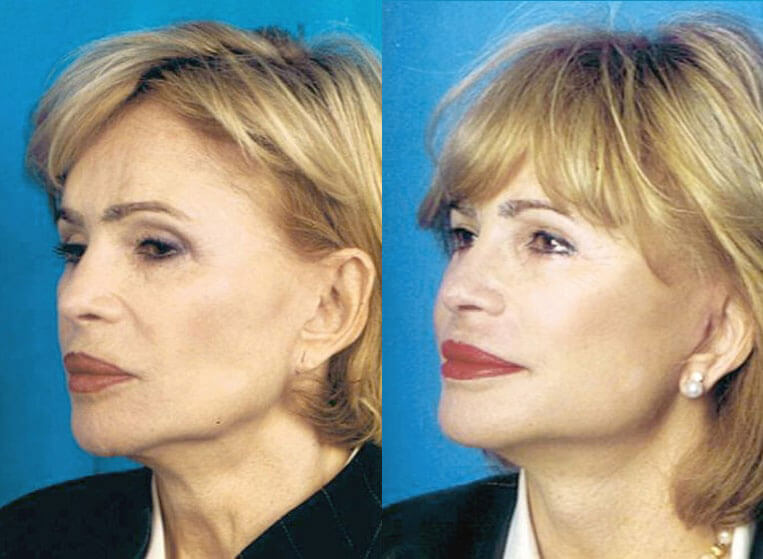 Revision Facelift before and after patient 01 case 4970 front view