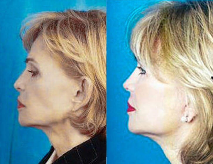 Revision Facelift before and after patient 01 case 4970 side view