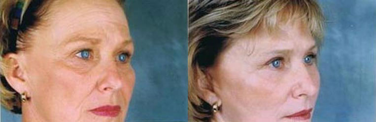 Revision Facelift before and after patient 02 case 4976 side view