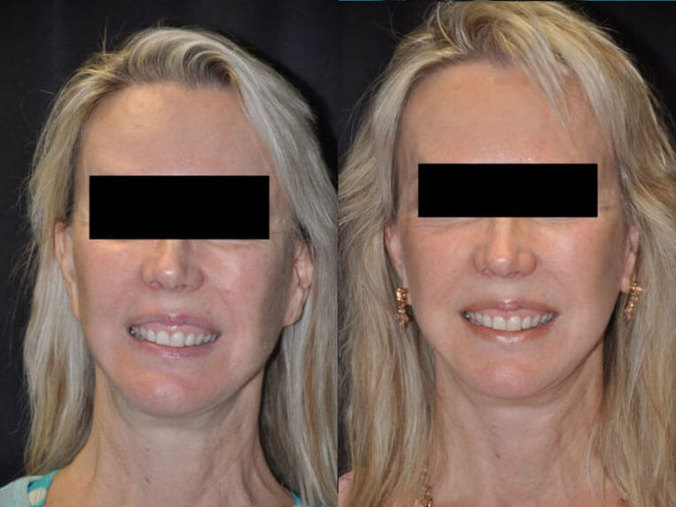 Revision Facelift before and after patient 03 case 4980 front view 1