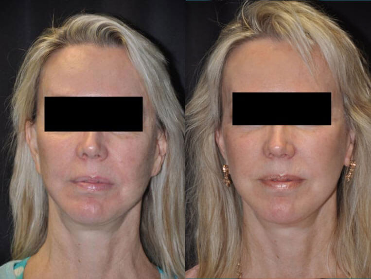 Revision Facelift before and after patient 03 case 4980 front view