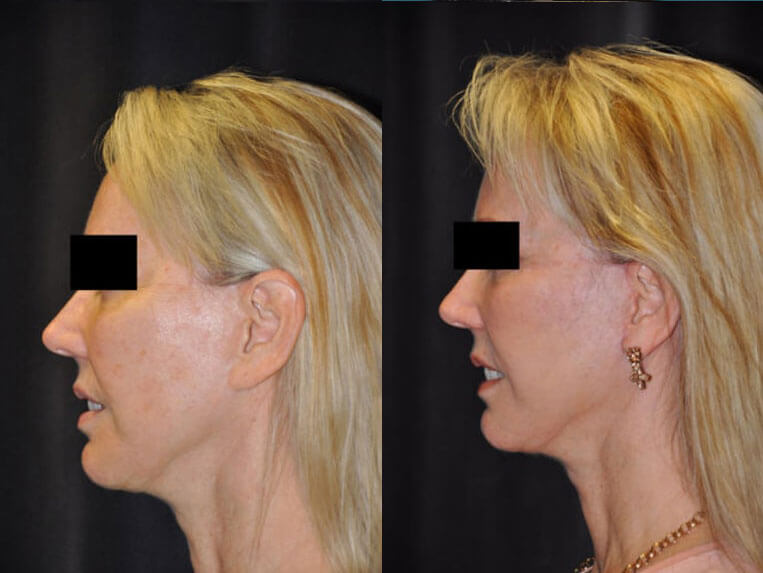 Revision Facelift before and after patient 03 case 4980 side view 1