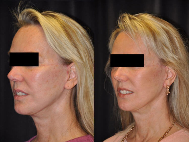 Revision Facelift before and after patient 03 case 4980 side view 2