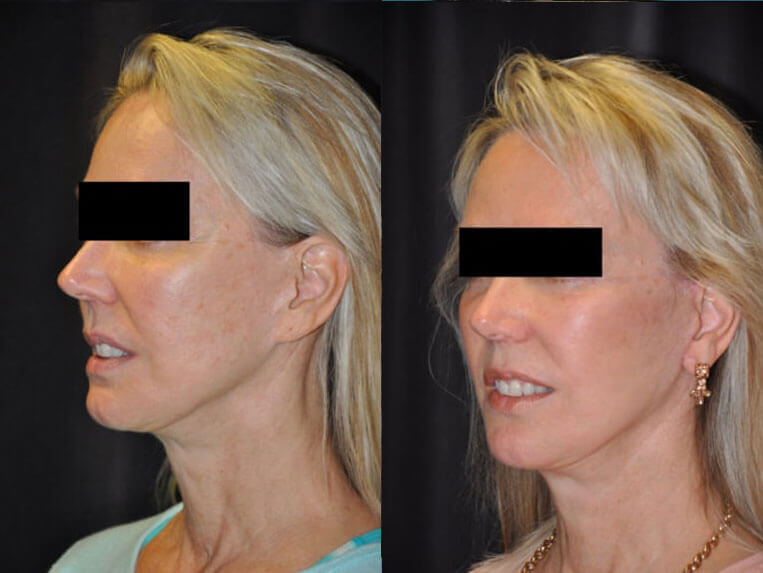 Revision Facelift before and after patient 03 case 4980 side view
