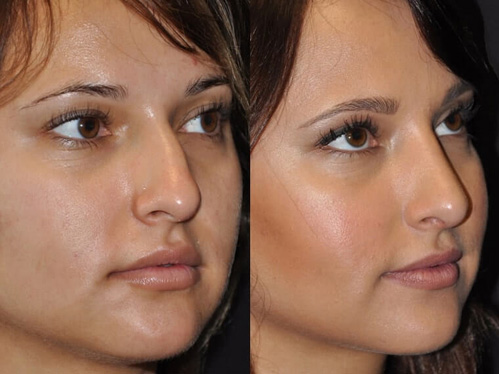 Rhinoplasty before and after patient 1 case 5520 side view