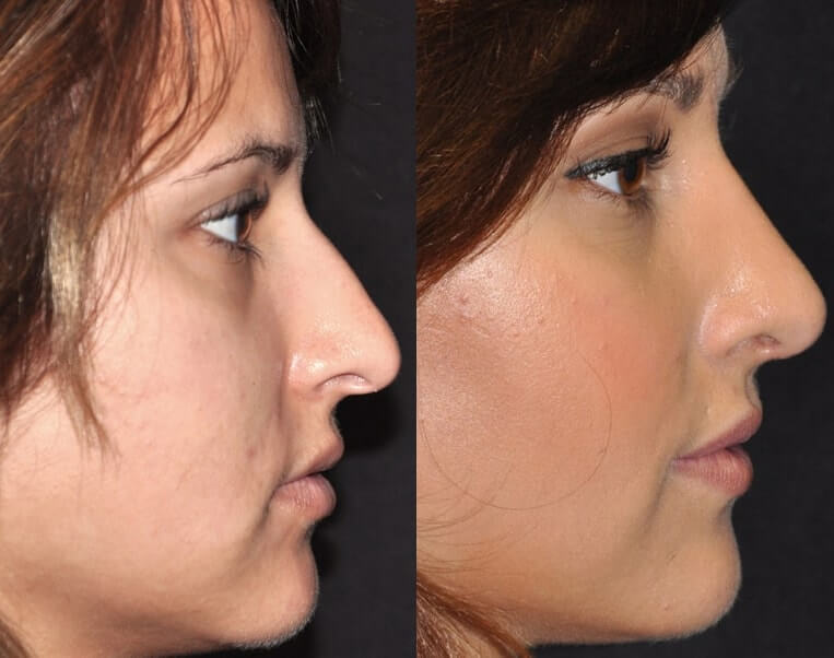 Rhinoplasty before and after patient 1 case 5520 side view 2