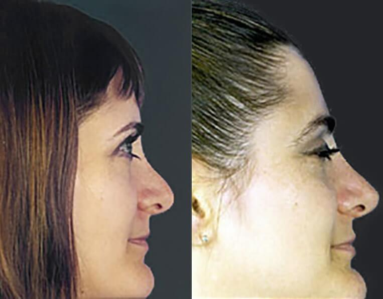 Rhinoplasty-before-and-after-patient-10-case-5440-side-view