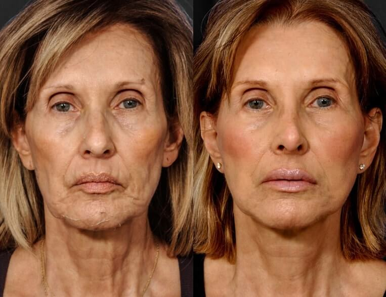 Rhinoplasty before and after patient 11 case 5403 front view