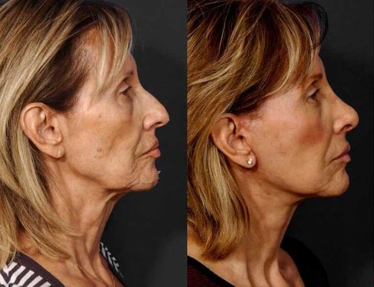 Rhinoplasty before and after patient 11 case 5403 side view 2