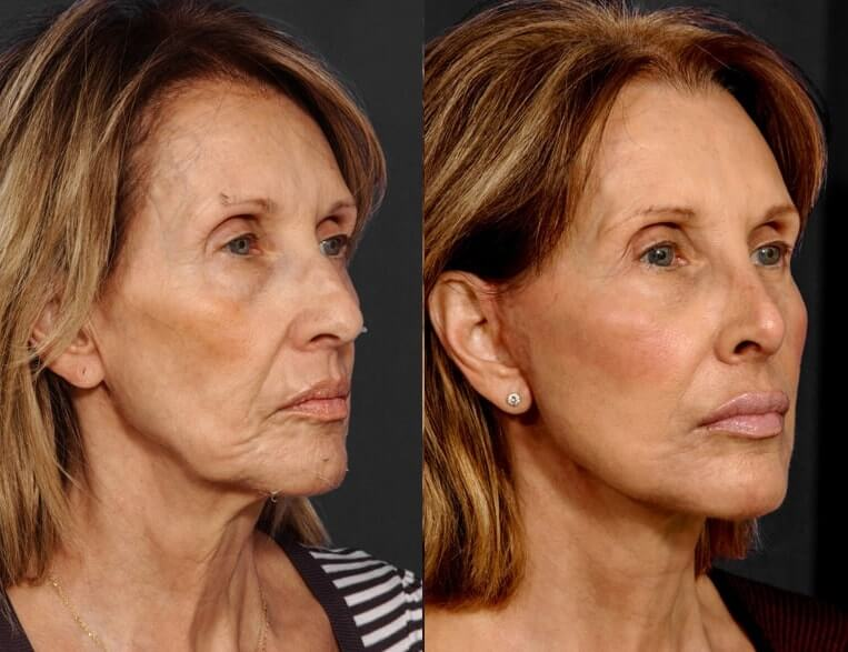Rhinoplasty before and after patient 11 case 5403 side view