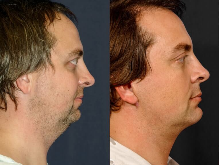 Rhinoplasty before and after patient 12 case 5417 side view 2